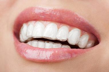 smile-invisi-brace